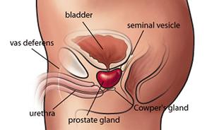 prostate-cancer-symptoms